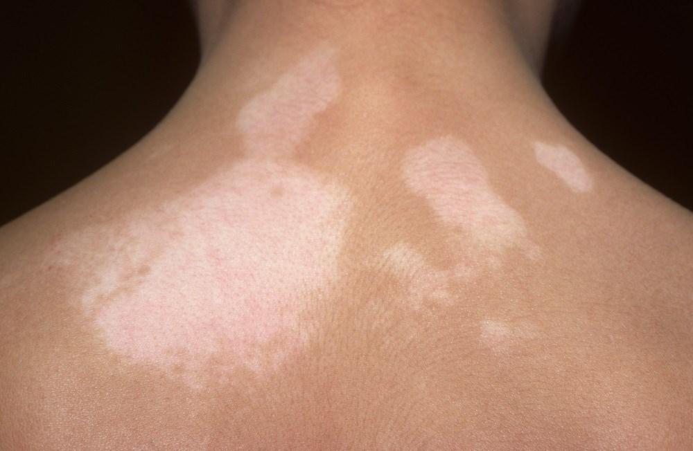 Increased Vitamin D Via Narrow Band UVB Therapy May Improve Vitiligo Symptoms