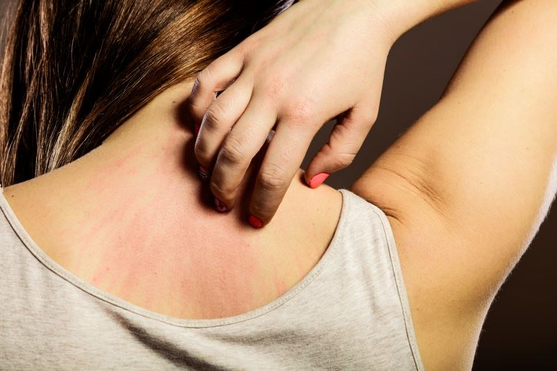 Herbal Supplement, Topical Treatment Available for Eczema, Urticaria