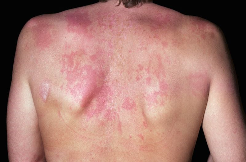 Second Antimalarial Agent May Be Effective in Cutaneous Lupus Despite Failure of Initial Agent