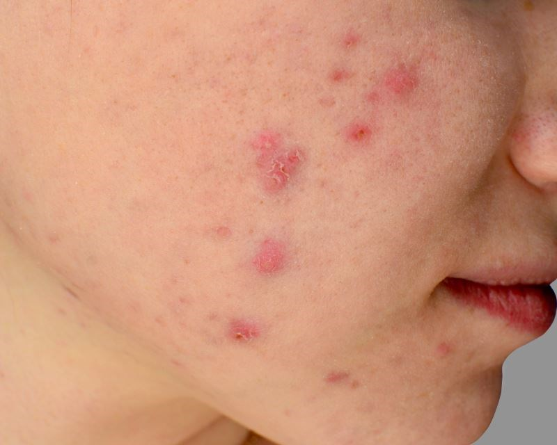 Acne Associated With Increased Risk for Major Depressive Disorder