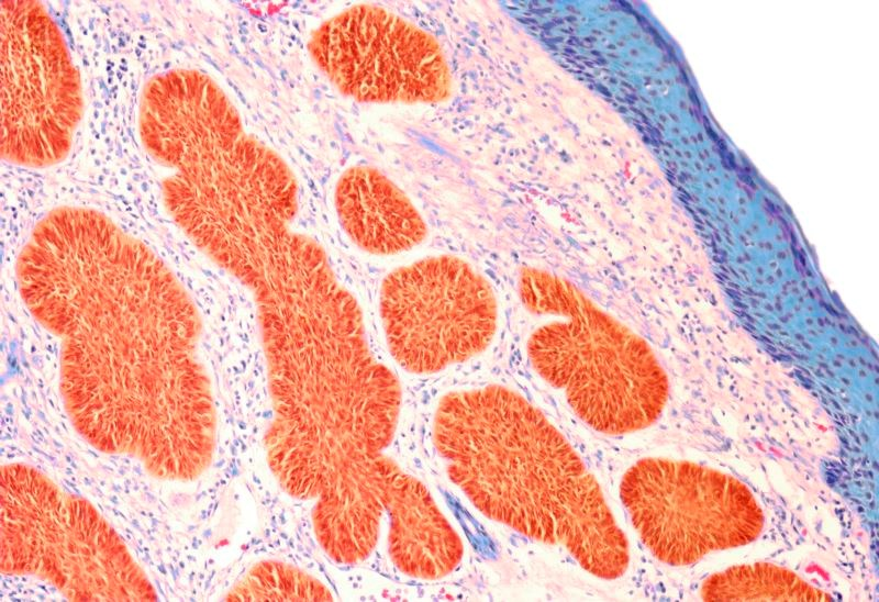 Patients Diagnosed With Incident Cancer Often Have Prior History of Cancer