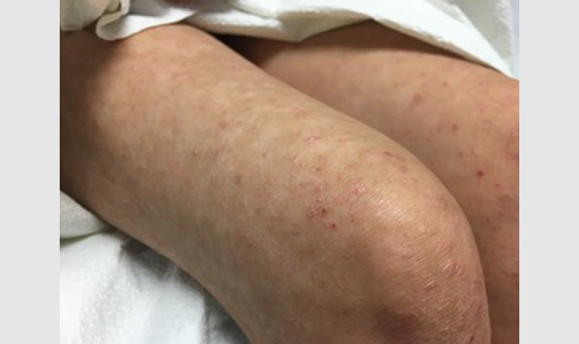 Clinical Challenge: Erythematous, Scaly Papules and Diffuse, Hypopigmented Macules in a Child
