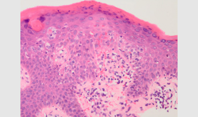 Appropriate Use Criteria Guidelines Developed for Dermatopathology
