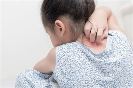 Comorbidity risks increase in children with psoriasis