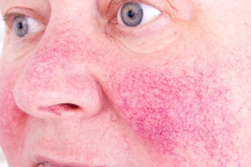 Treating Rosacea: Unique Clinical Characteristics Inform Treatment