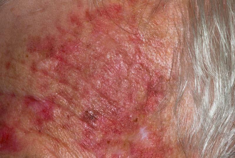 Predictors of Treatment Response in Actinic Keratosis Treated With Ingenol Mebutate 0.015% Gel