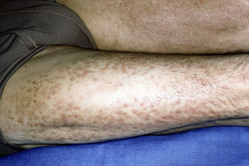 Baricitinib 4 mg Effective for Moderate to Severe Atopic Dermatitis