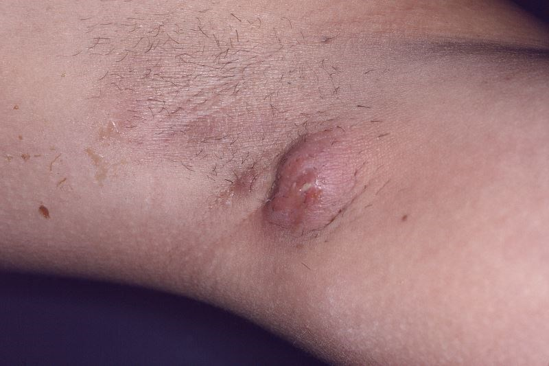 Hidradenitis Suppurativa Associated With Insulin Resistance
