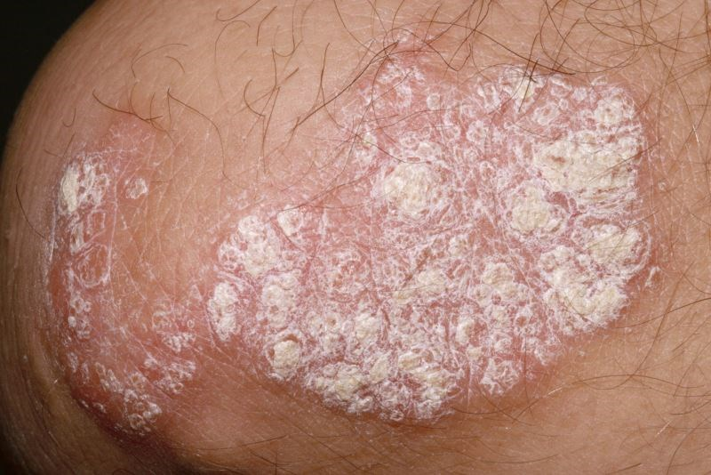 High-Dose Certolizumab Pegol Effective for Symptom Reduction in Chronic Plaque Psoriasis