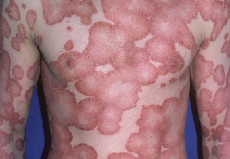 Secukinumab Effective for Treatment of Refractory Plaque Psoriasis