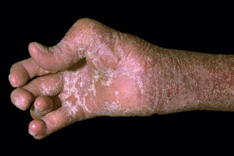 Ixekizumab Has Sustained Efficacy in Biologic-Naive Active Psoriatic Arthritis