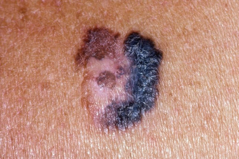 Melanoma, Nonmelanoma Skin Cancer Associated With Reduced Risk for Alzheimer's