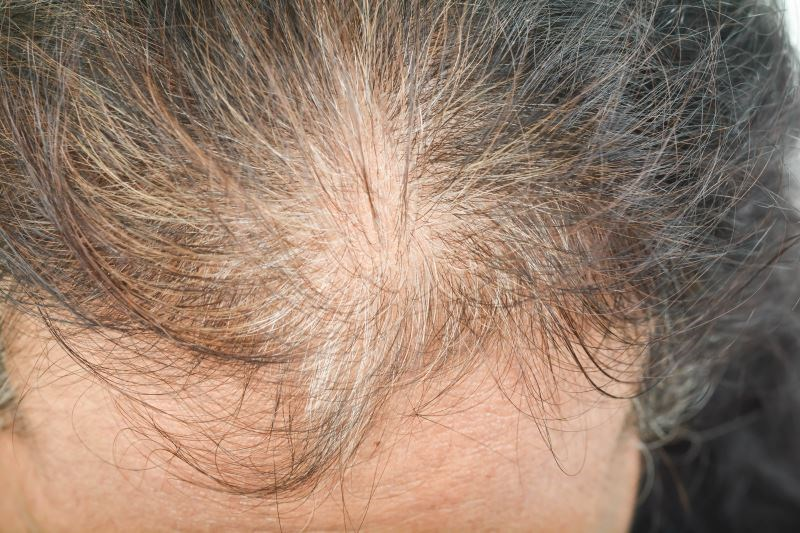 Once-Daily Combination Treatment Effective for Female Pattern Hair Loss