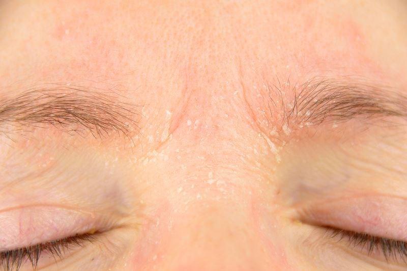 Methotrexate, Azathioprine Safe for Long-Term Treatment of Atopic Dermatitis