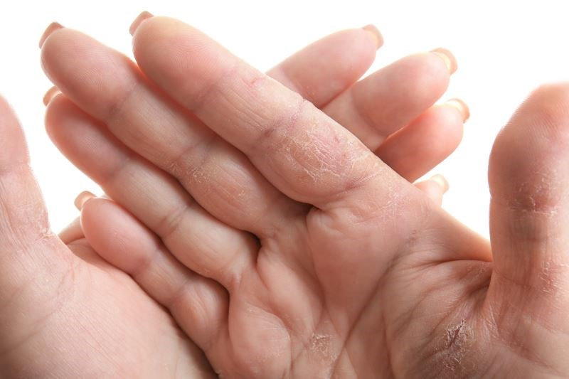 Hand Dermatitis and Hygiene in the Workplace
