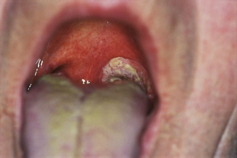 Specific Oral Bacteria May Reduce Risk for Squamous Cell Carcinoma