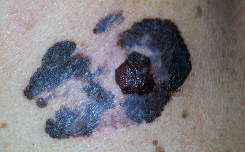 Advanced Melanoma May Benefit From Encorafenib, Binimetinib Combination