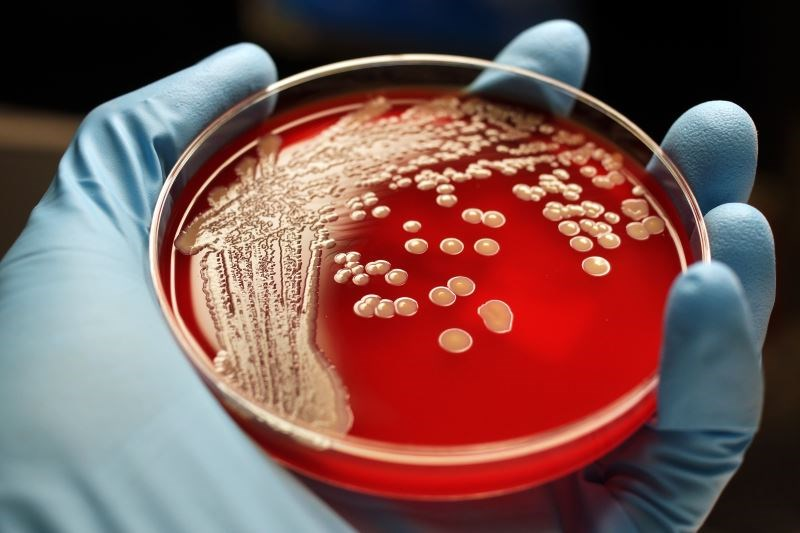 It Costs $2.2 Billion a Year to Treat Antibiotic Resistance