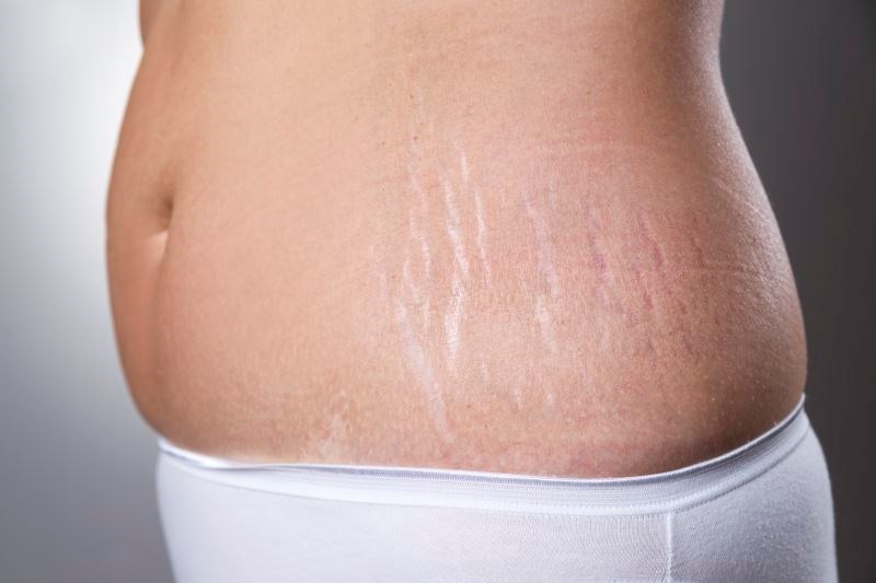 Stretch Mark Outcomes Similar With Carboxytherapy, Platelet-Rich Plasma