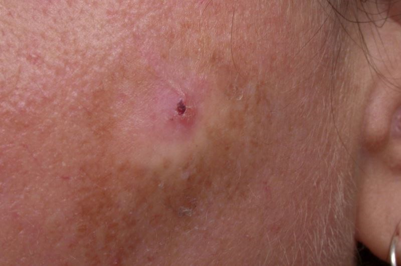 5-FU should be considered over imiquimod for the short-term reduction in risk for subsequent actinic keratosis.