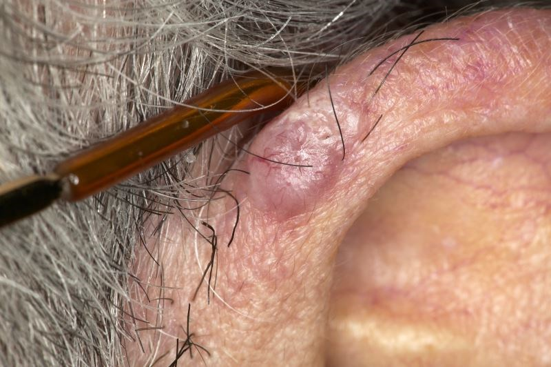 The risk for basal cell carcinoma was increased in patients with HIV infection.