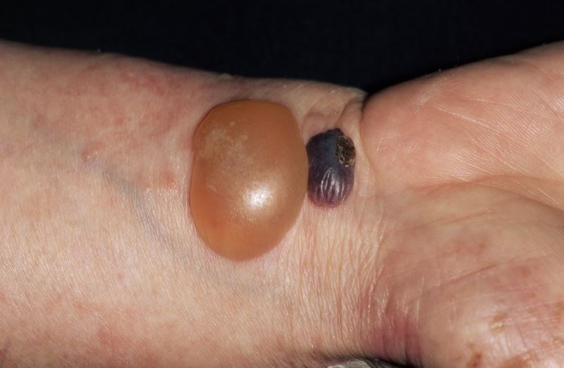 Bullous Pemphigoid Risk in Patients With Diabetes Treated With DPP-4 Inhibitors