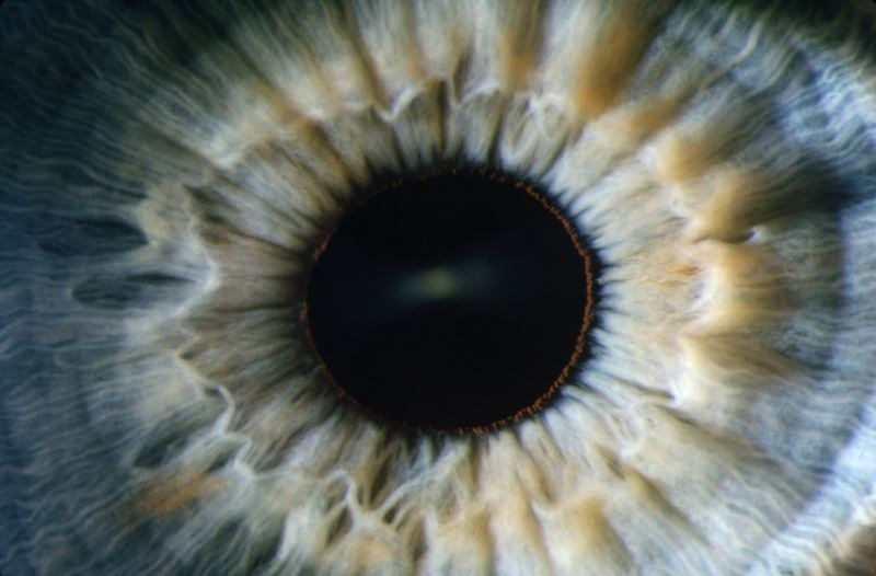 Risk for Melanoma Linked to Iris Pigmented Lesions