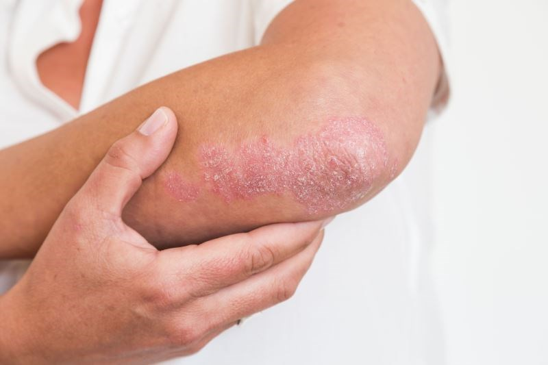 Carboxytherapy for Patients With Chronic Localized Plaque Psoriasis