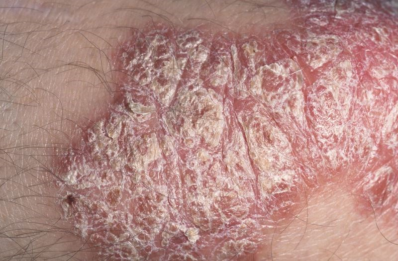 Apremilast Safe, Effective After Switch From Etanercept in Psoriasis