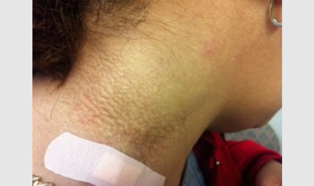 Clinical Challenge: Cutaneous Textural Changes on the Neck of a Middle-Aged Woman