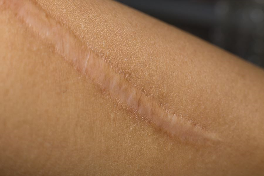 Researchers identified disagreement between patient and physician evaluation of scars in 8 of 29 studies.