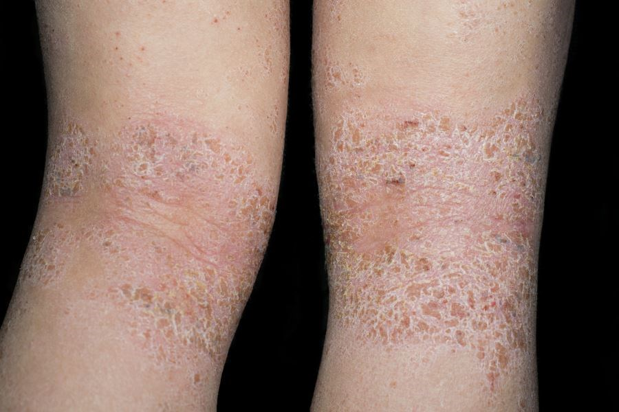 Treatment with lebrikizumab 125 mg Q4W regimen was associated with significant improvements in patients with moderate to severe atopic dermatitis.