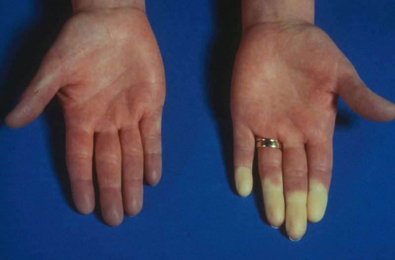 The results showed a moderate to large treatment effect in both primary and secondary Raynaud's phenomenon.