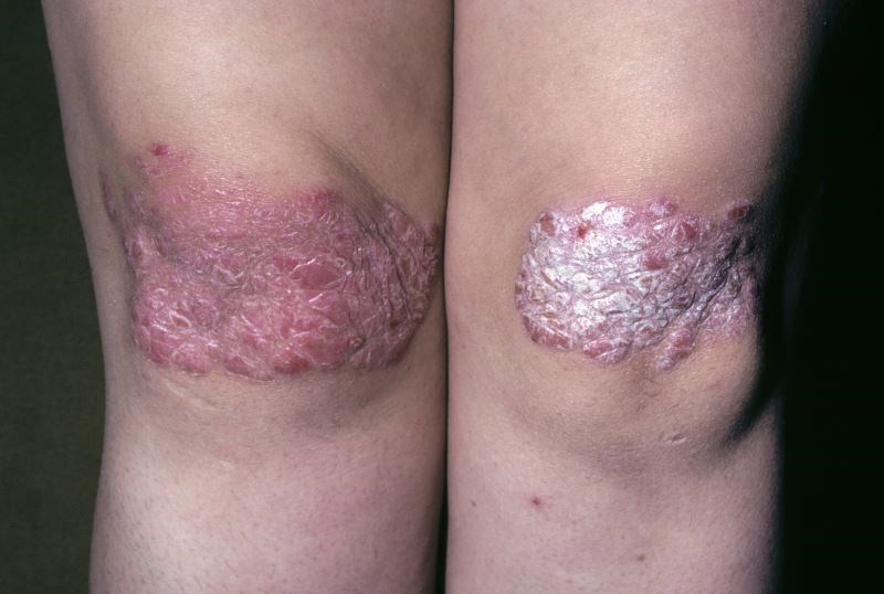 Secukinumab Effective for Psoriasis Through 5 Years of Treatment