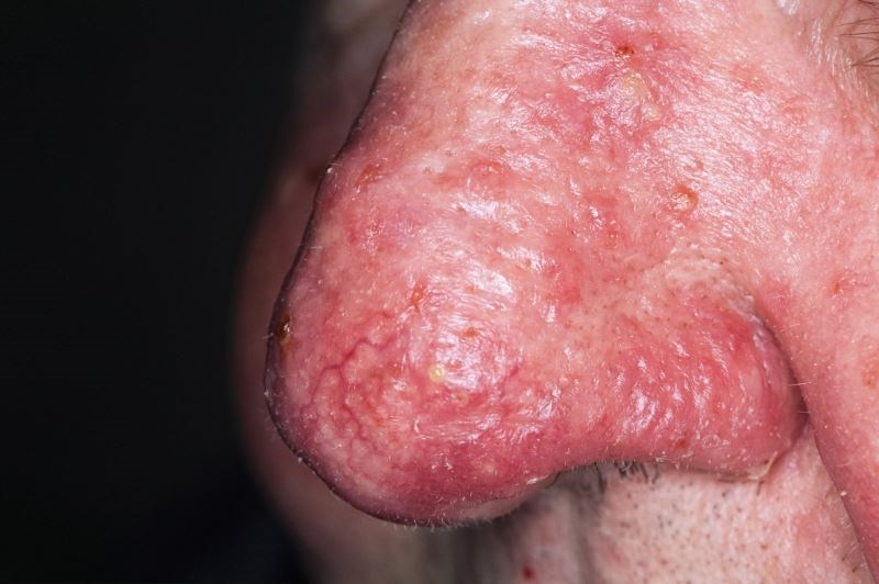 Topical Oxymetazoline Effective for Reducing Rosacea-Associated Erythema