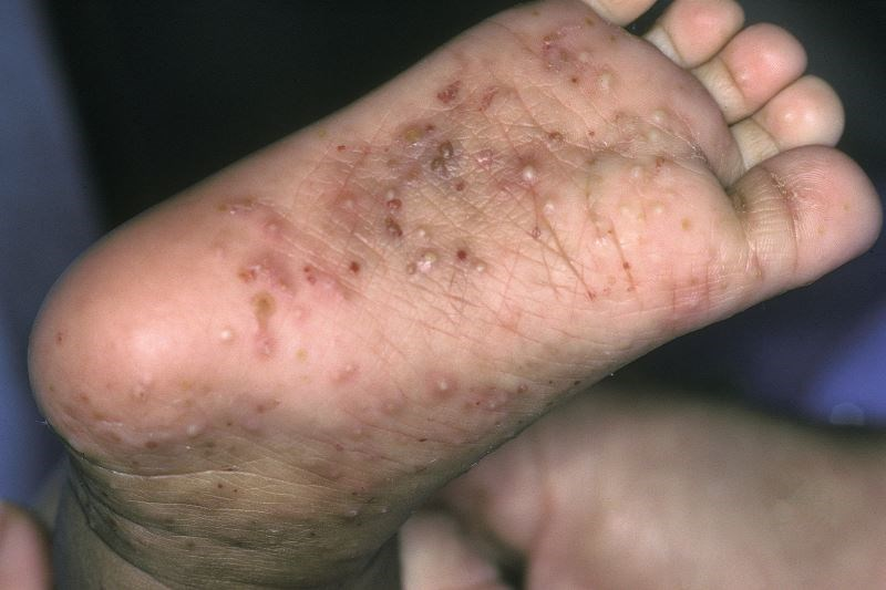 Examination limited to hands, feet, and lower legs has a sensitivity of about 90 percent for detecting scabies.