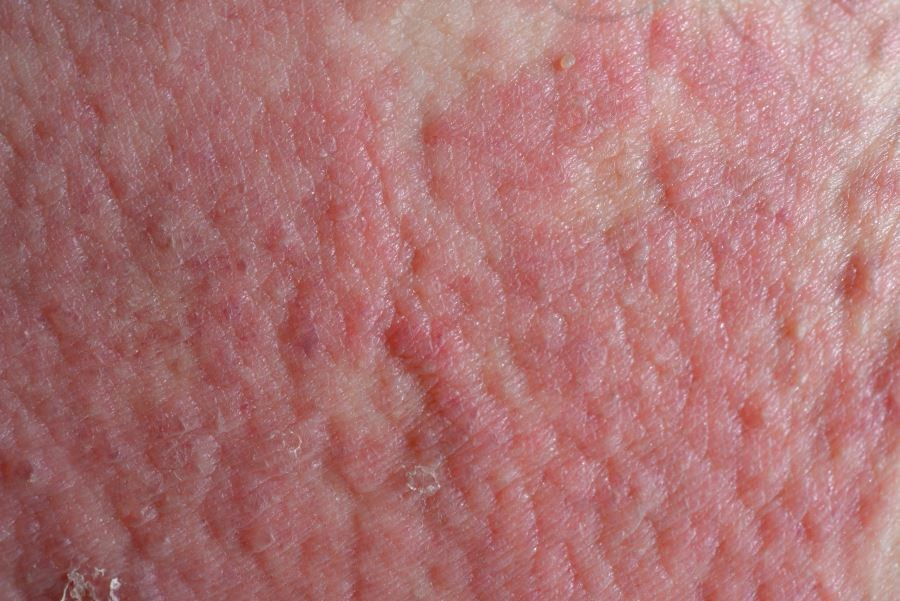 Study participants had a history of skin crease involvement, asthma or hay fever, and general dry skin, as well as visible flexural eczema and/or onset at <2 years of age.