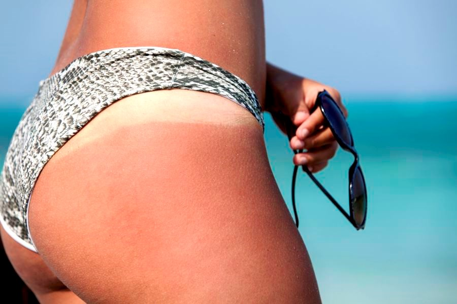 Screening Tool Helps Assess Tanning Addiction