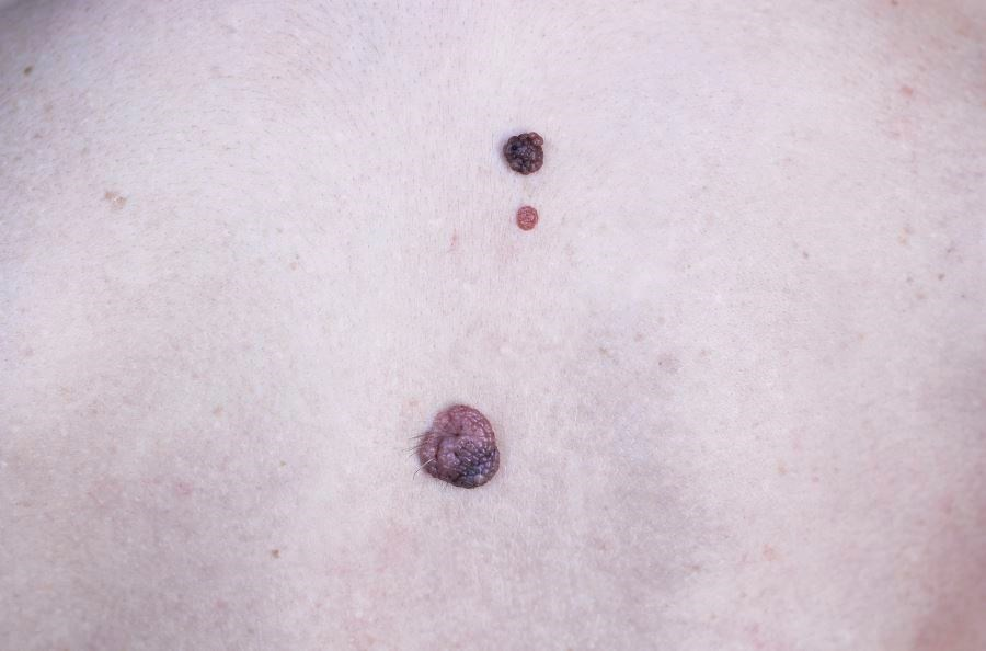Sentinel Node Biopsy vs Breslow Thickness for Melanoma Prognosis: Which is Better?