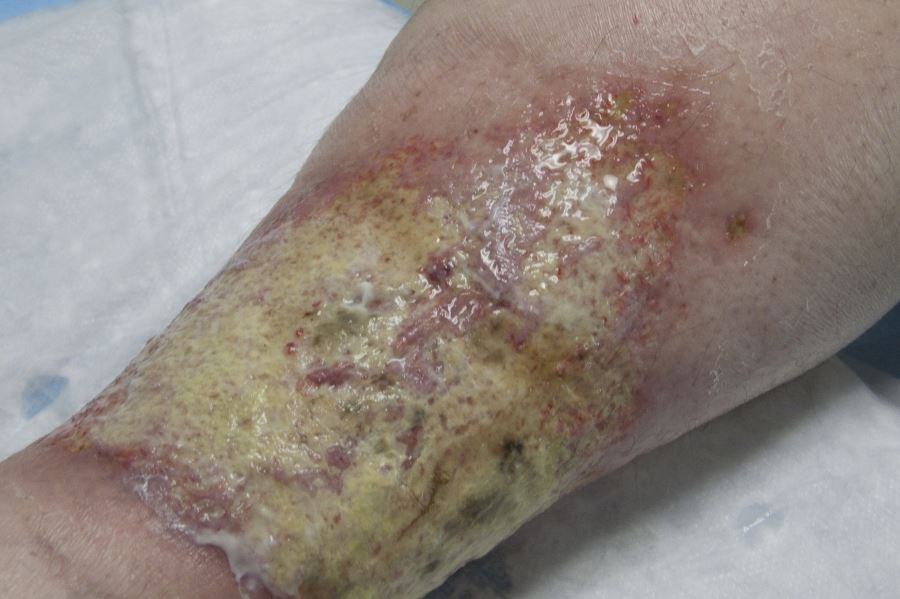 Comorbidities Associated With Pyoderma Gangrenosum Vary With Age