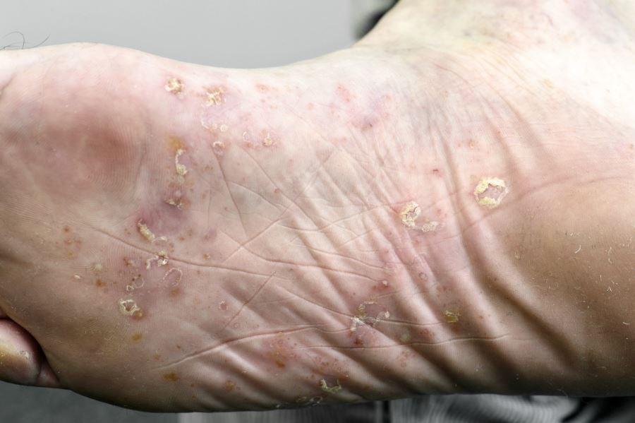 Guselkumab Promising for Treatment-Resistant Palmoplantar Pustulosis