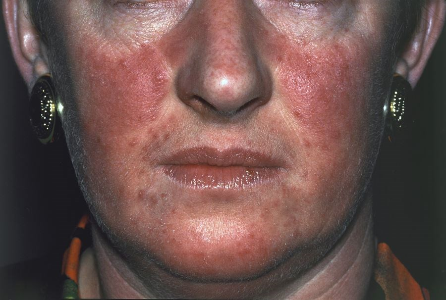 Clinicians should consider screening patients with rosacea for common comorbidities, ideally before considering treatment options.