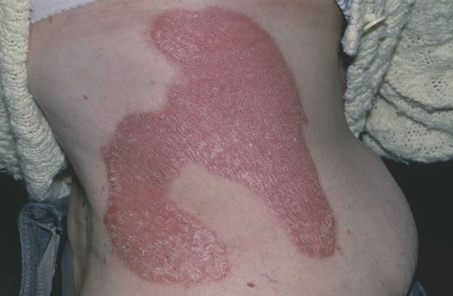 Brodalumab Has Comparable Efficacy to Ustekinumab in Plaque Psoriasis