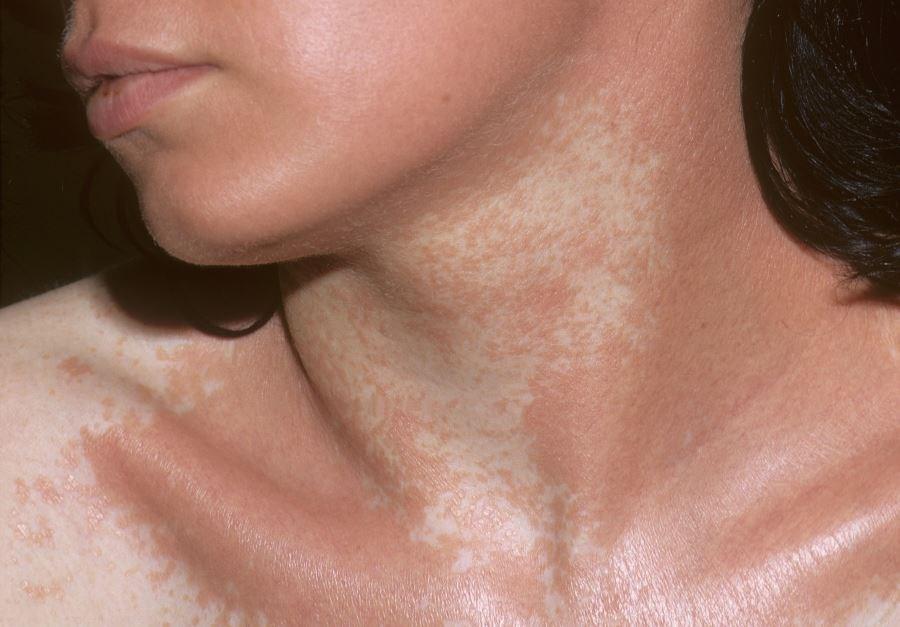 The 2-year retrospective study investigated participants with active non-segmental vitiligo.