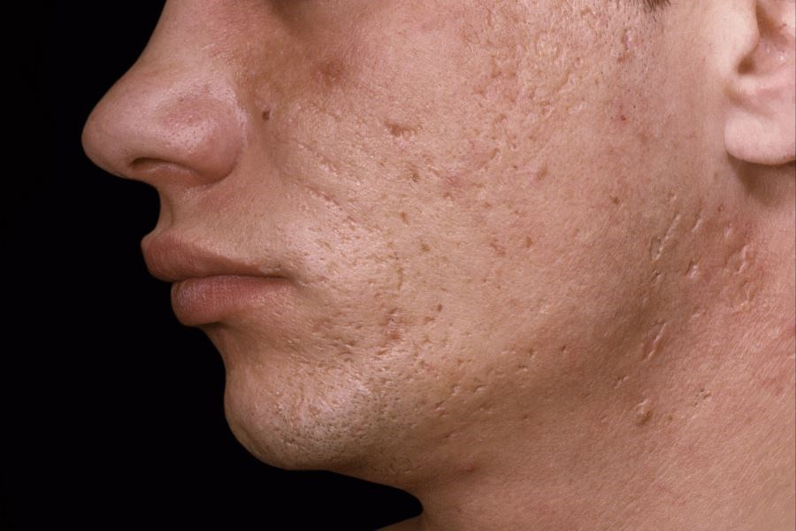 Patients Rate Blunt Cannula Subcision Best for Acne Scars