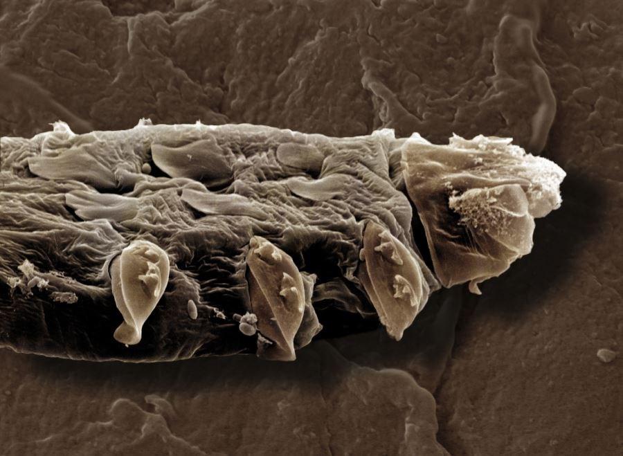 Clarifying Disease Characteristics of Papulopustular Rosacea