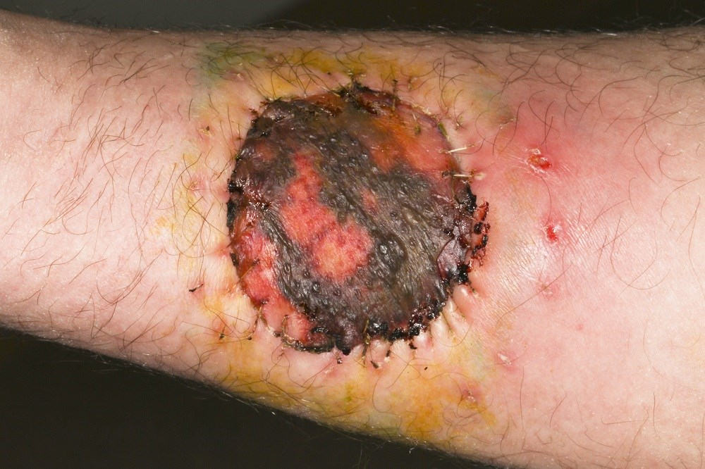 Self-Examination Key to Fewer Follow-Up Visits After Melanoma Excision