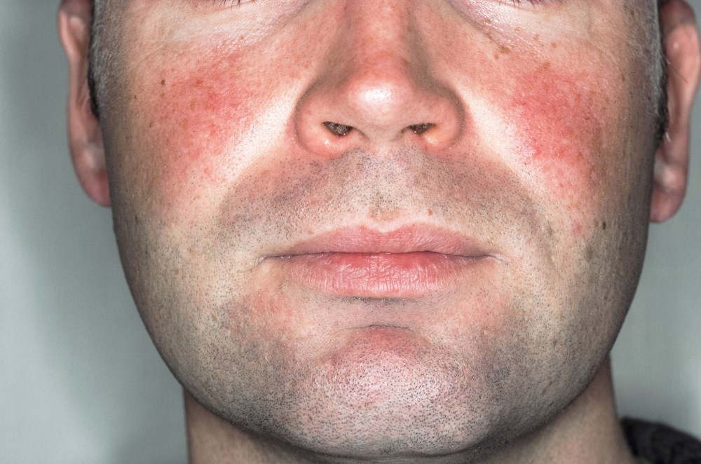 Rosacea more often is evident after the age of 30 years, peaking between the ages of 40 and 50 years.