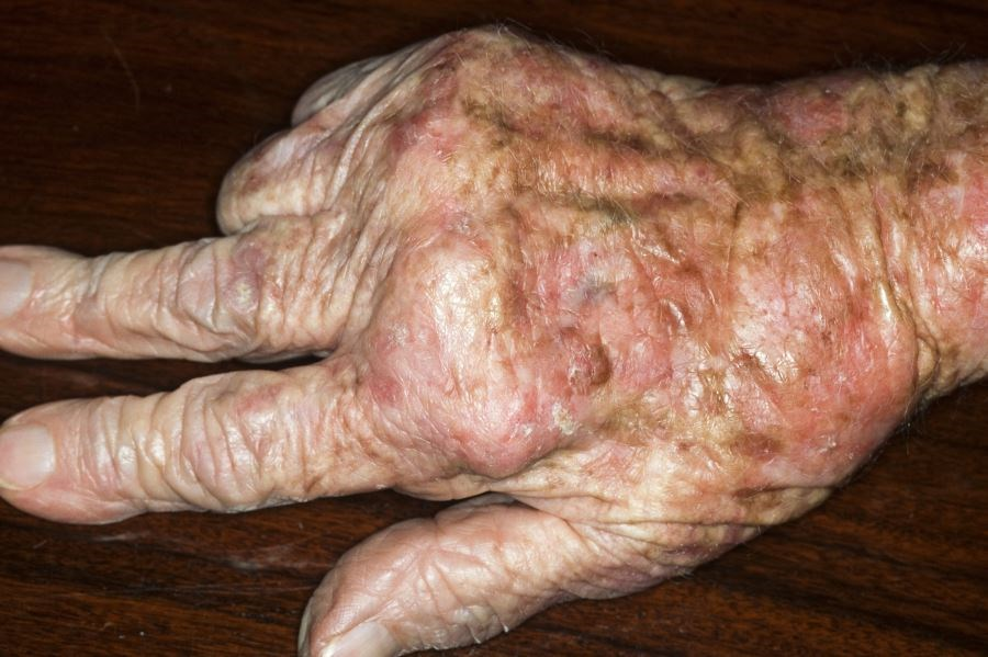 Screening Tool Helps Identify Psoriasis Patients In Need of Rheumatology Consult