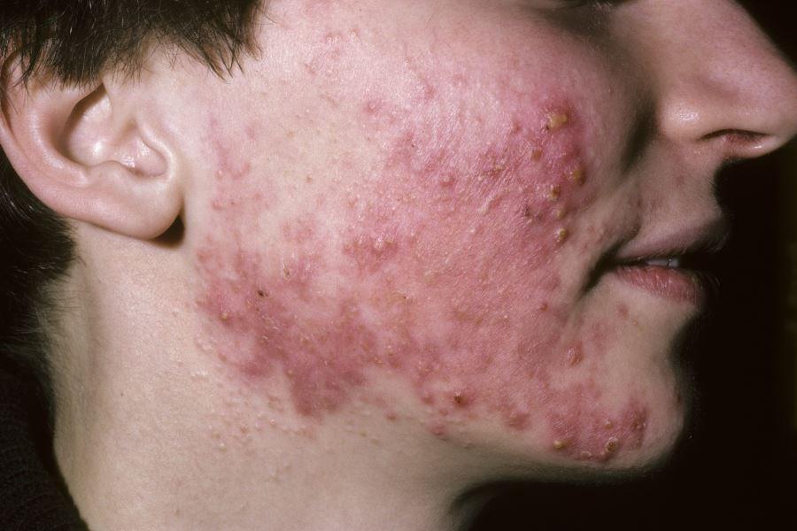 Oily skin was a risk factor for severe acneiform eruption.